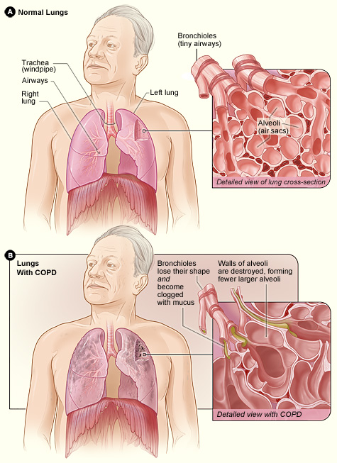 Difference between the lung of a COPD patient and an unaffected one. Image taken from NHLBI website (click on image to access the source)